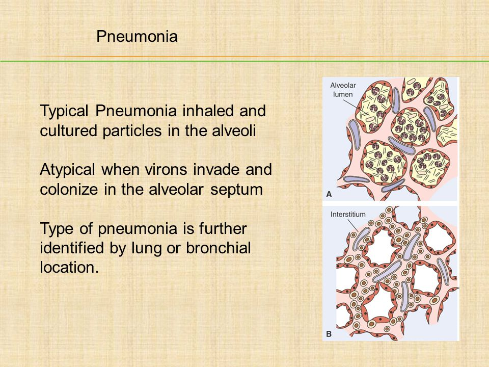 Typical Pneumonia inhaled and cultured particles in the alveoli
