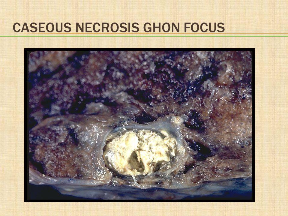 Caseous necrosis Ghon focus