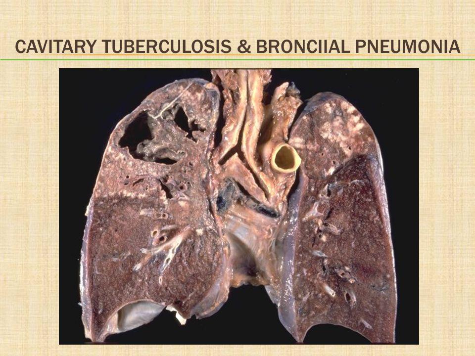 Cavitary tuberculosis & bronciial Pneumonia