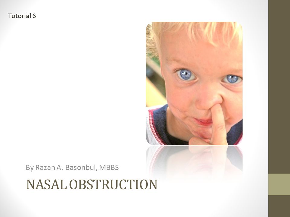 Tutorial 6 By Razan A. Basonbul, MBBS Nasal obstruction