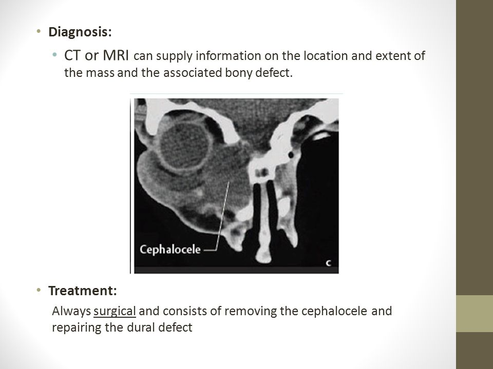 Diagnosis: CT or MRI can supply information on the location and extent of the mass and the associated bony defect.