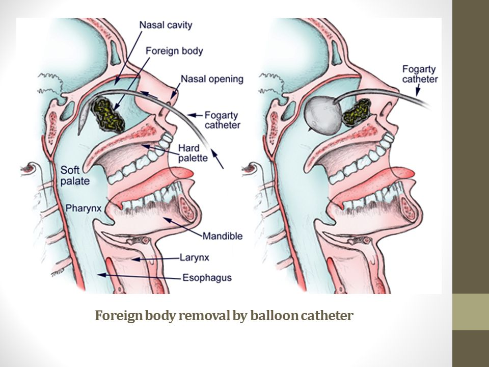 Foreign body removal by balloon catheter