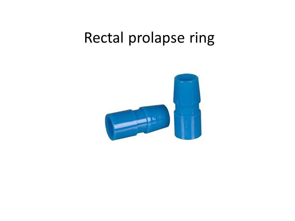 Rectal prolapse ring