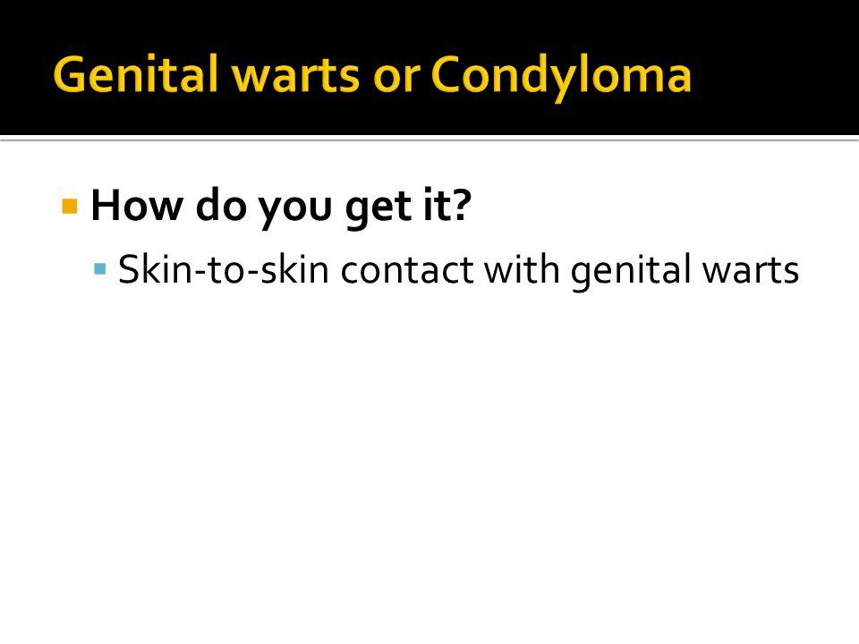 Genital warts or Condyloma