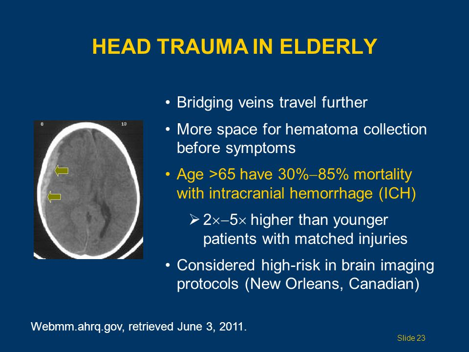 Head Trauma IN ELDERLY Bridging veins travel further