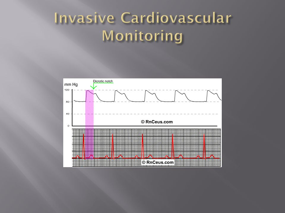 Invasive Cardiovascular Monitoring