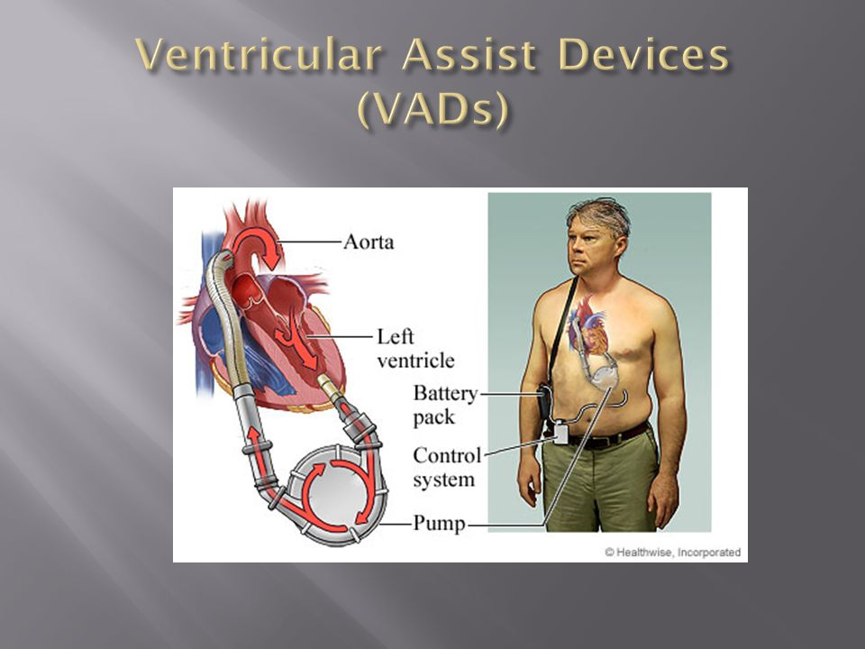 Ventricular Assist Devices (VADs)