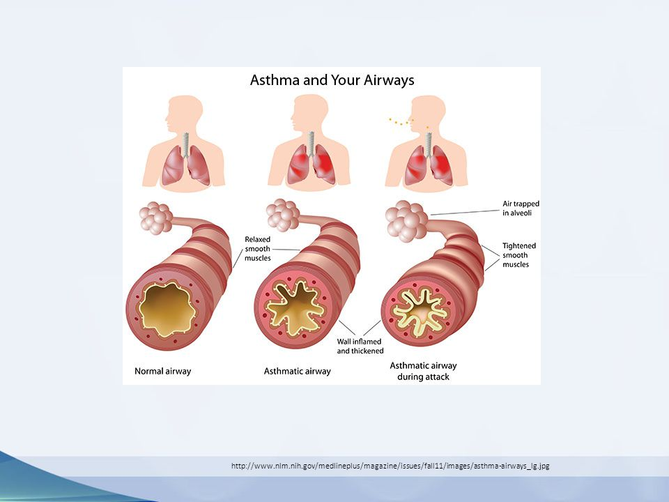 http://www.nlm.nih.gov/medlineplus/magazine/issues/fall11/images/asthma-airways_lg.jpg