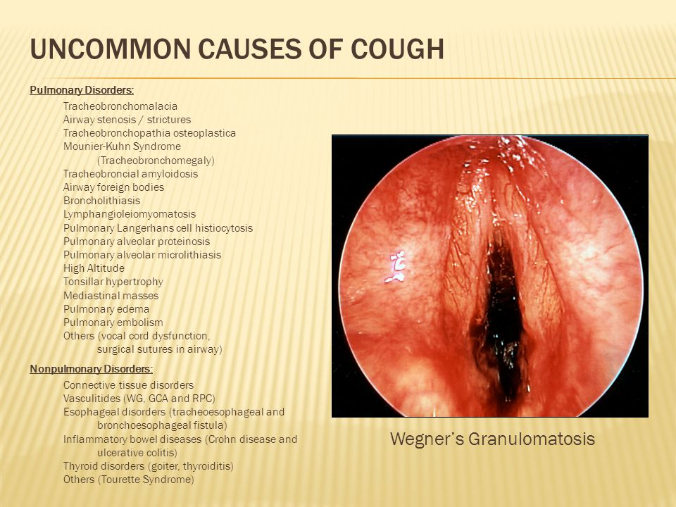 Uncommon Causes of Cough