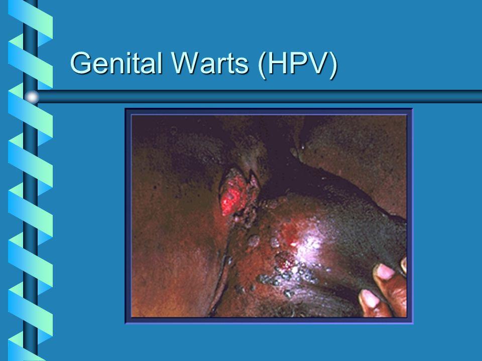 Genital Warts (HPV)