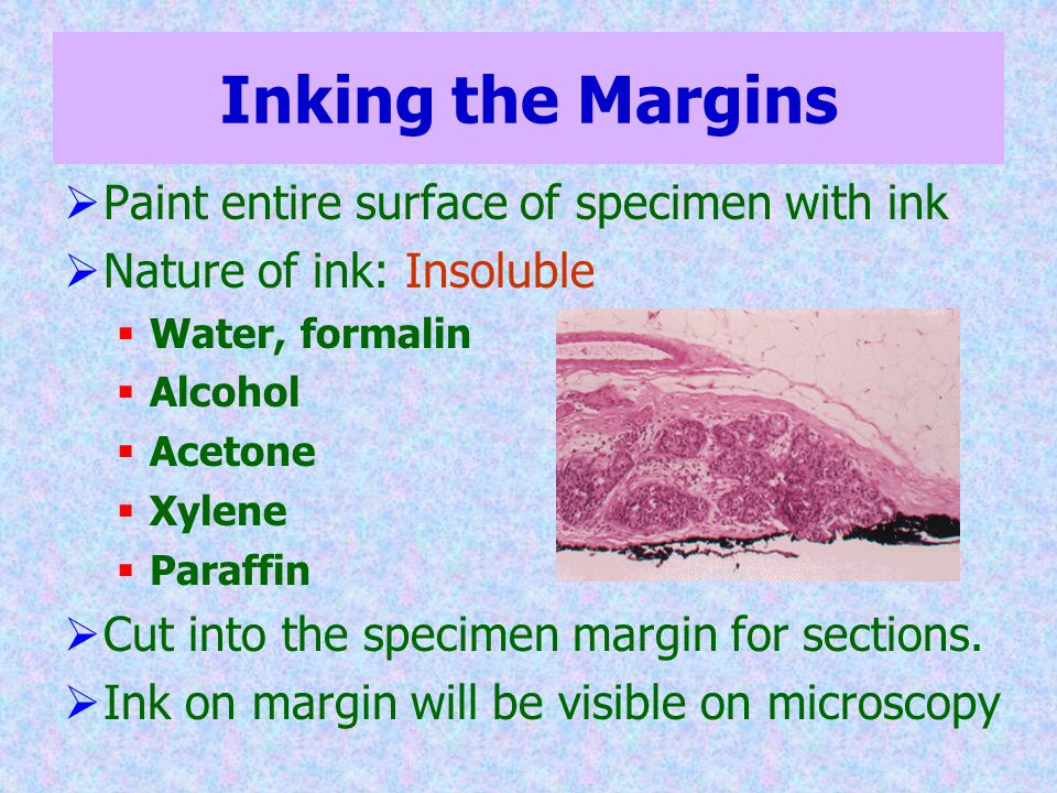 Inking the Margins Paint entire surface of specimen with ink