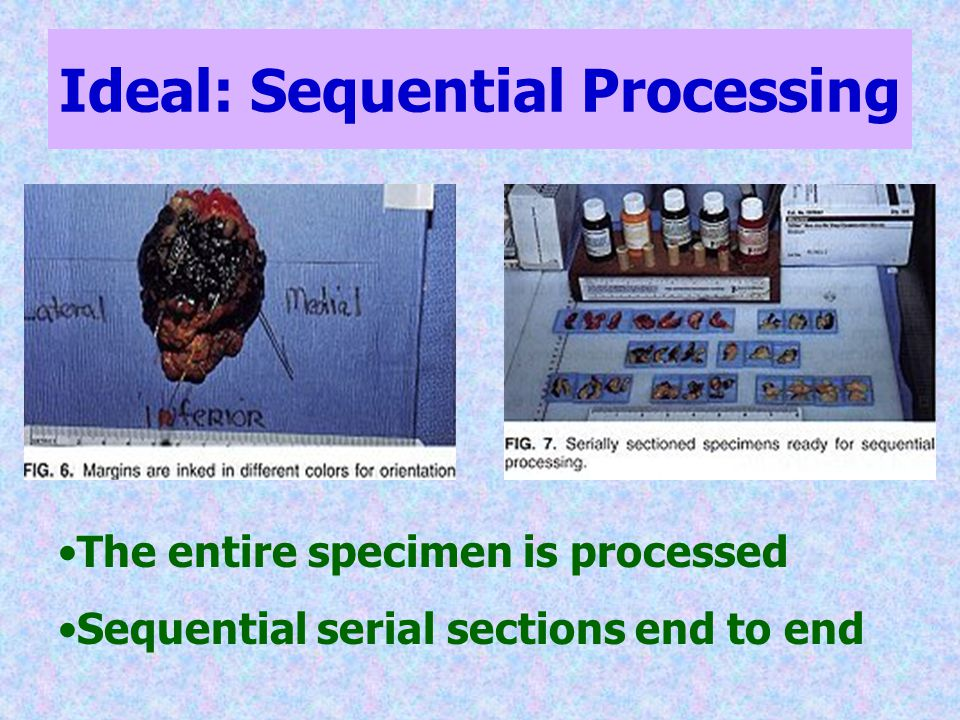 Ideal: Sequential Processing