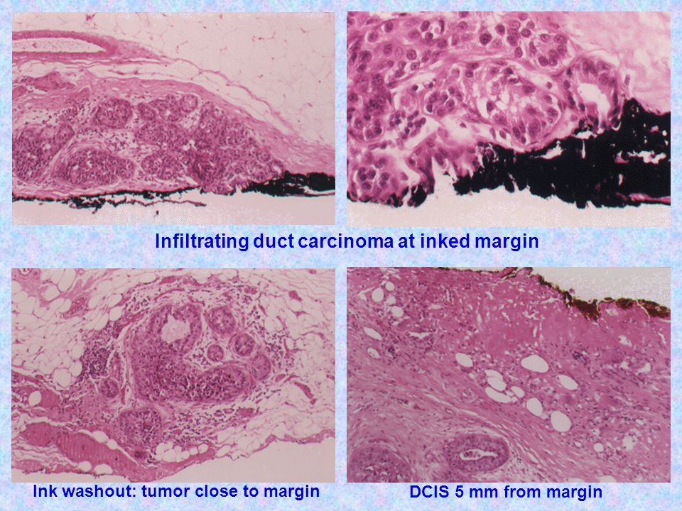 Infiltrating duct carcinoma at inked margin