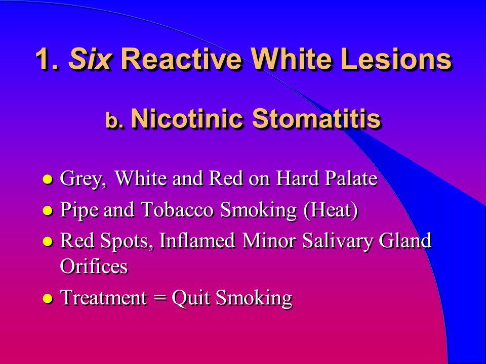 1. Six Reactive White Lesions b. Nicotinic Stomatitis