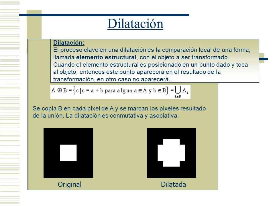Dilatación Original Dilatada Dilatación: