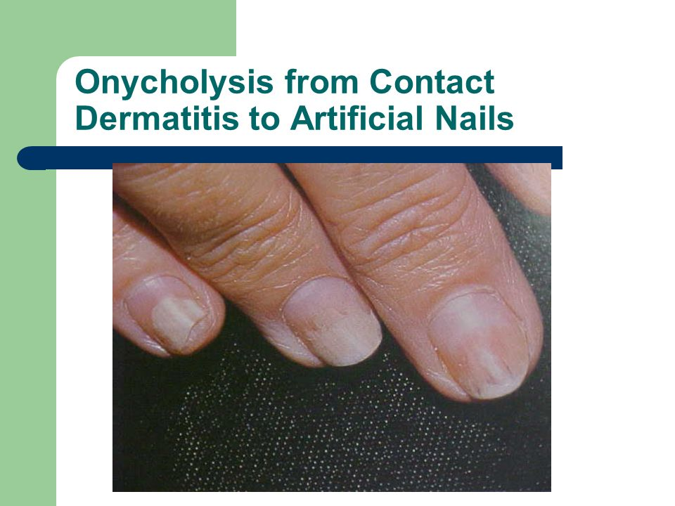 Onycholysis from Contact Dermatitis to Artificial Nails