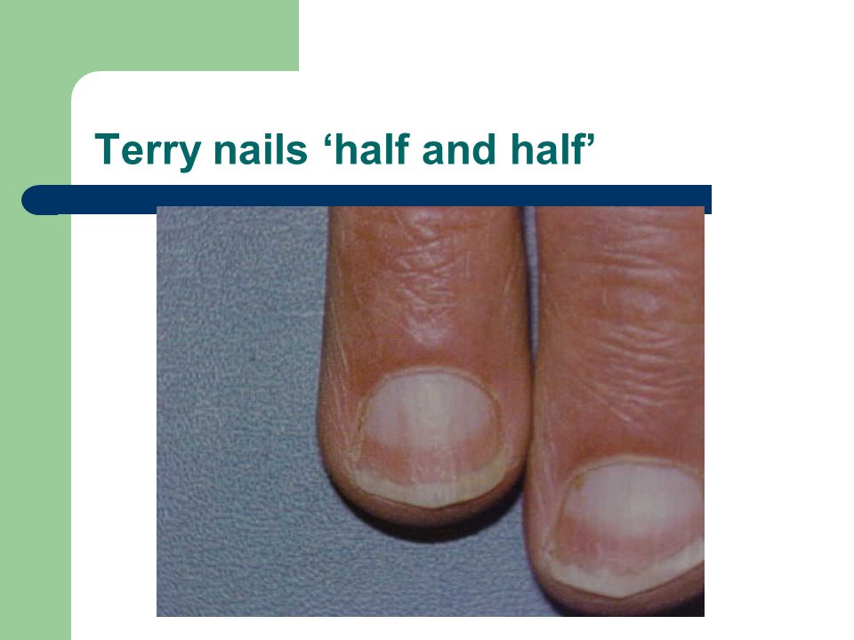 Terry nails 'half and half'