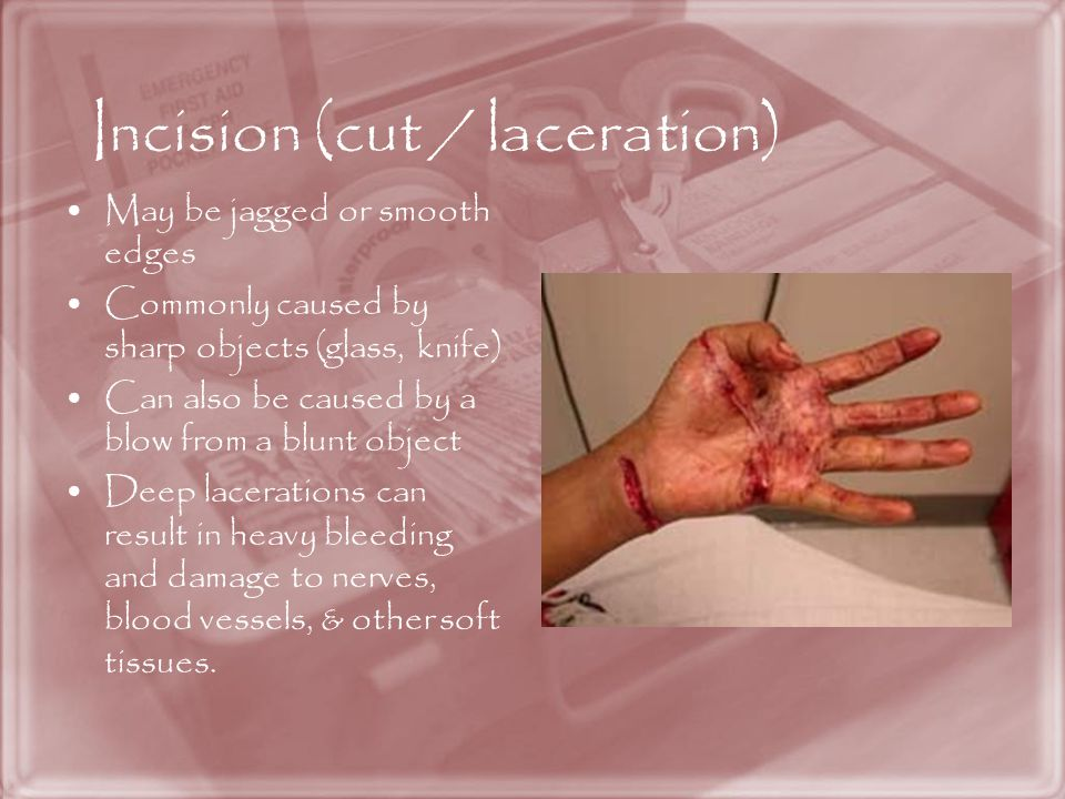 Incision (cut / laceration)