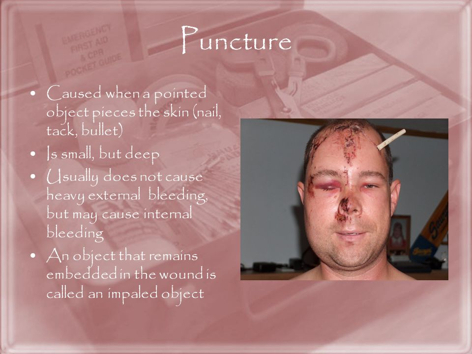 Puncture Caused when a pointed object pieces the skin (nail, tack, bullet) Is small, but deep.