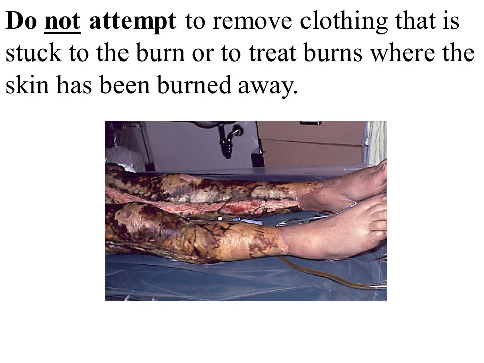 Do not attempt to remove clothing that is stuck to the burn or to treat burns where the skin has been burned away.
