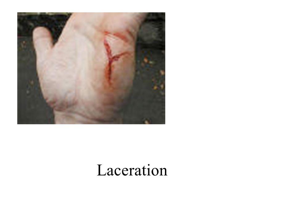Laceration