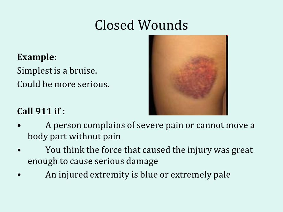 Closed Wounds Example: Simplest is a bruise. Could be more serious.