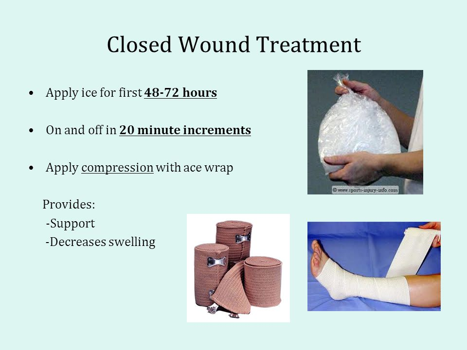 Closed Wound Treatment