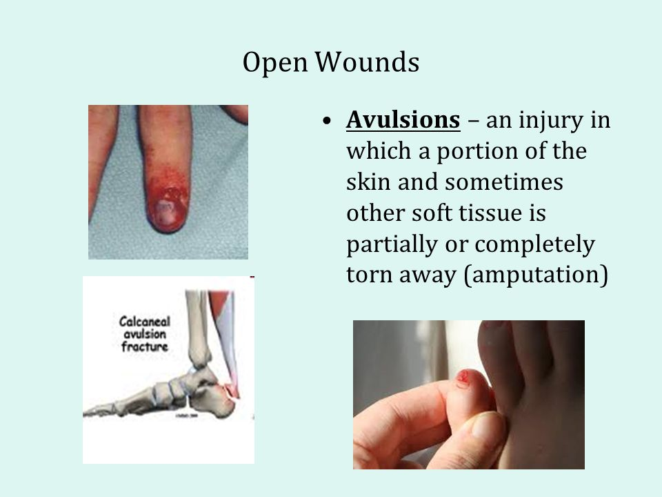 Open Wounds Avulsions – an injury in which a portion of the skin and sometimes other soft tissue is partially or completely torn away (amputation)