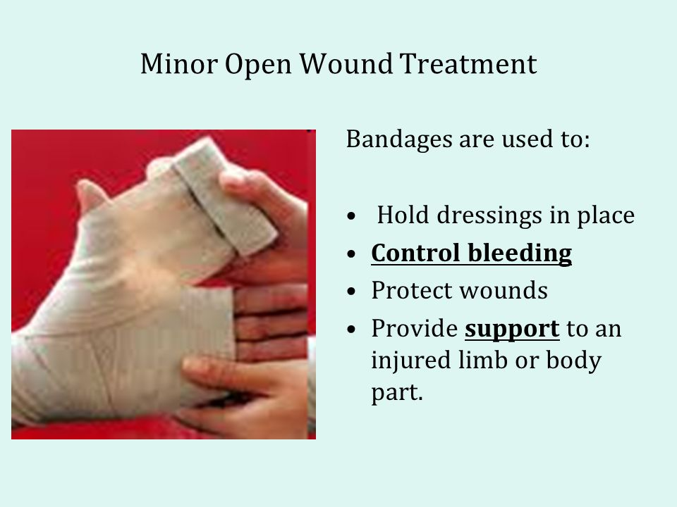 Minor Open Wound Treatment