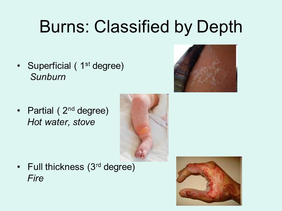 Burns: Classified by Depth