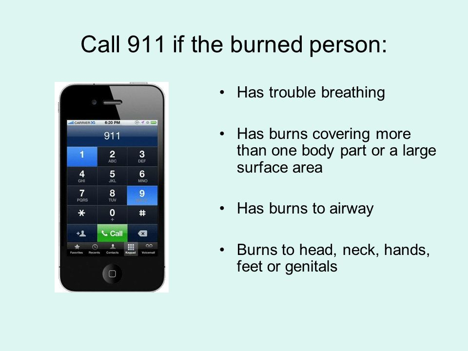Call 911 if the burned person: