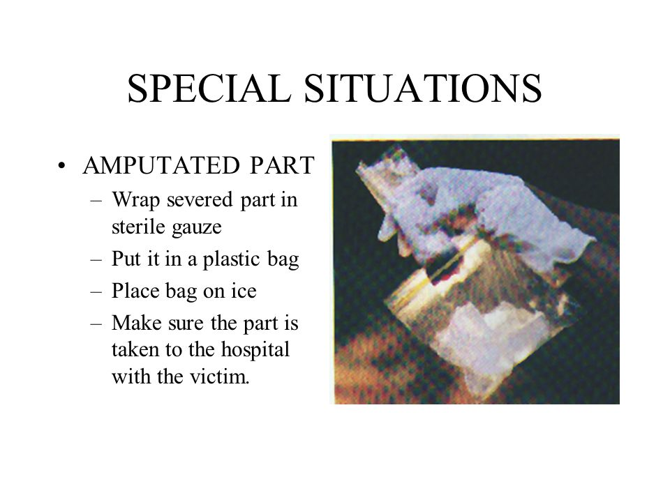 SPECIAL SITUATIONS AMPUTATED PART Wrap severed part in sterile gauze