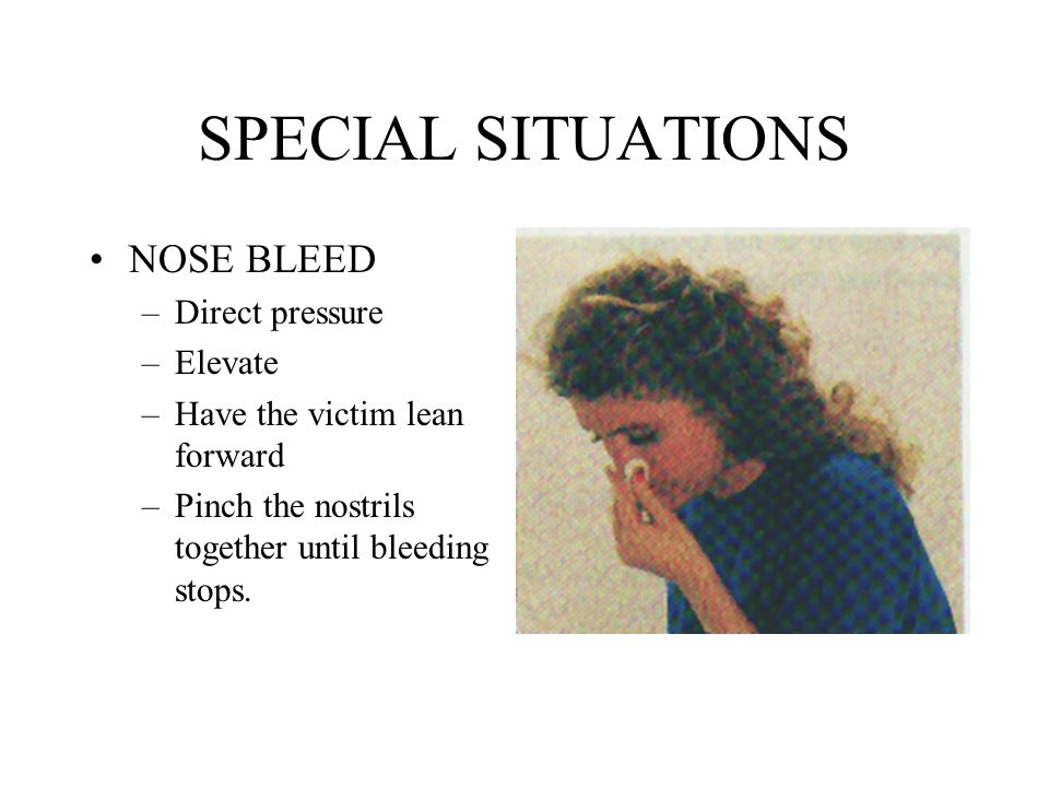 SPECIAL SITUATIONS NOSE BLEED Direct pressure Elevate