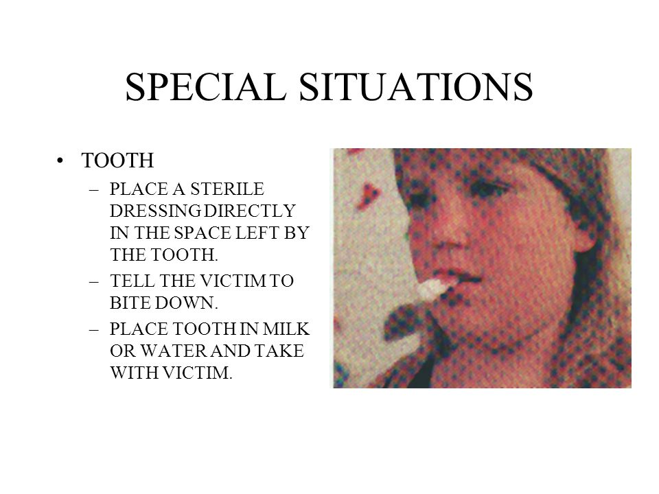 SPECIAL SITUATIONS TOOTH