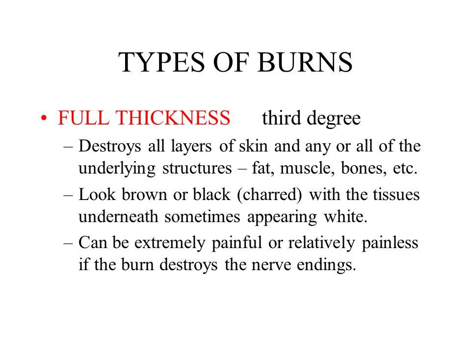 TYPES OF BURNS FULL THICKNESS third degree