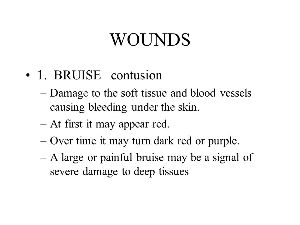 WOUNDS 1. BRUISE contusion