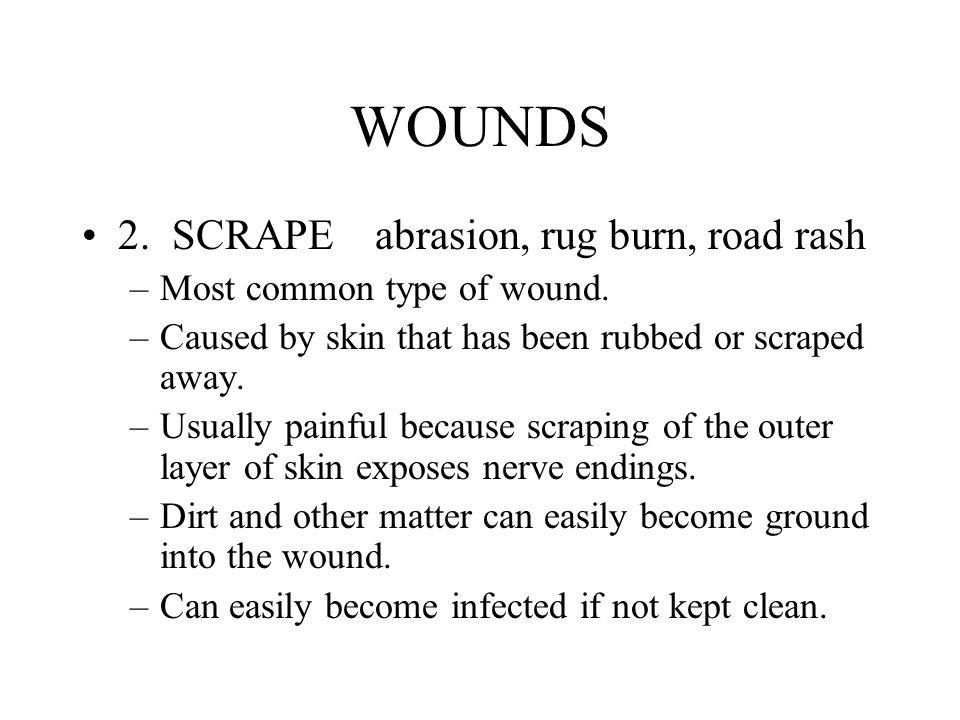 WOUNDS 2. SCRAPE abrasion, rug burn, road rash