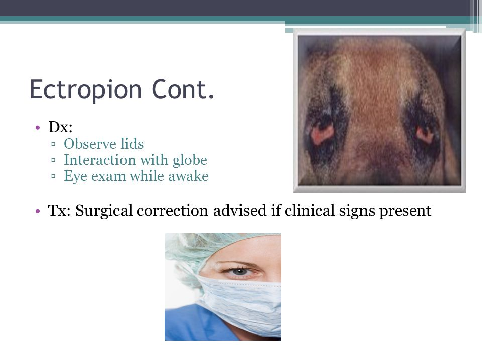 Ectropion Cont. Dx: Observe lids. Interaction with globe.