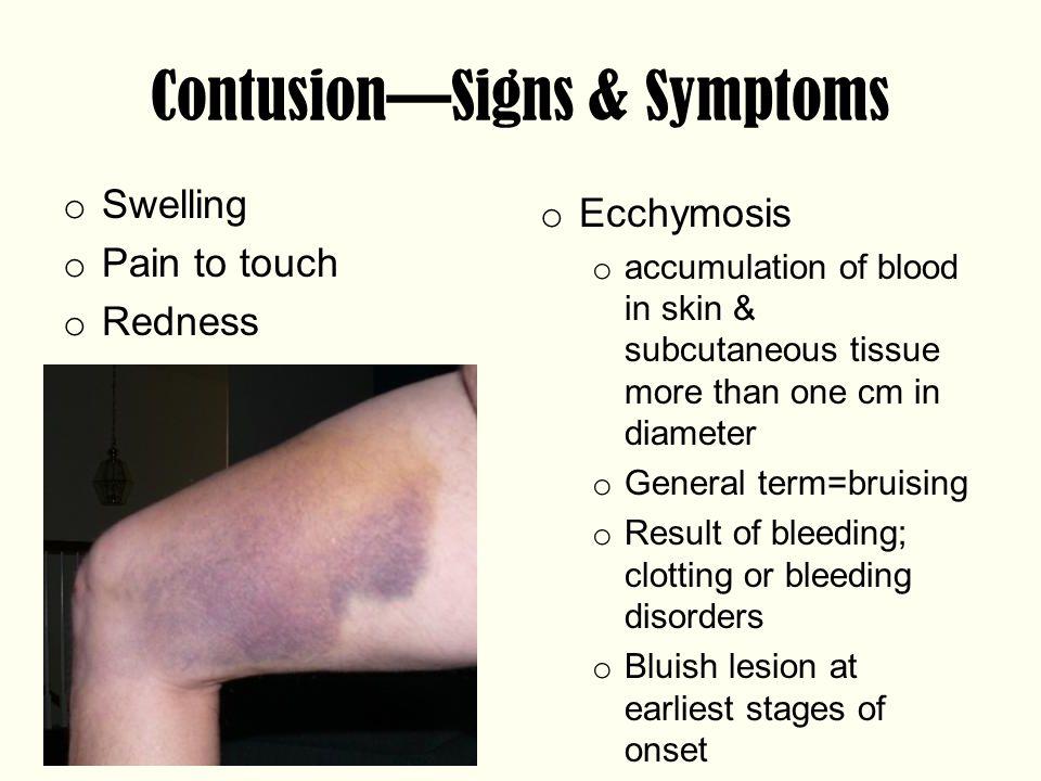 Contusion—Signs & Symptoms