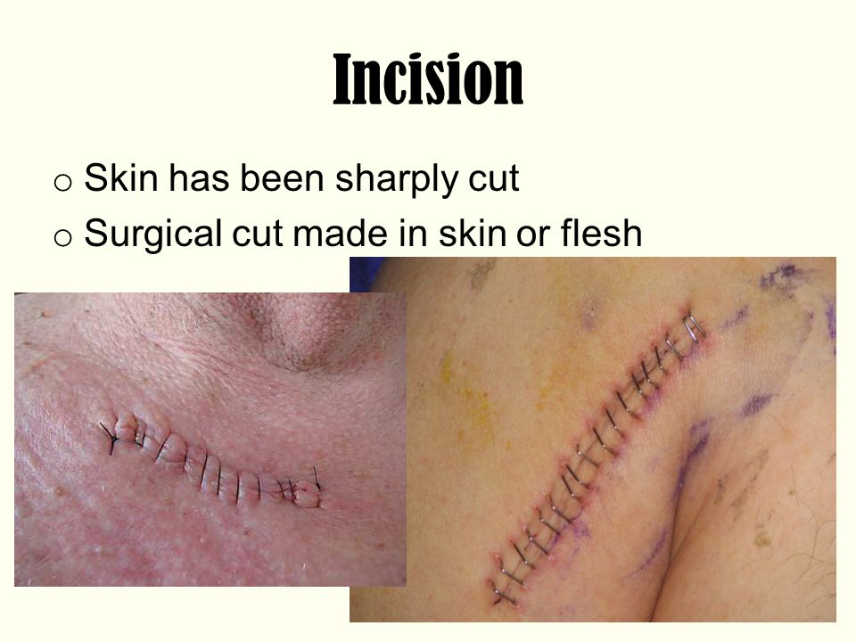Incision Skin has been sharply cut Surgical cut made in skin or flesh