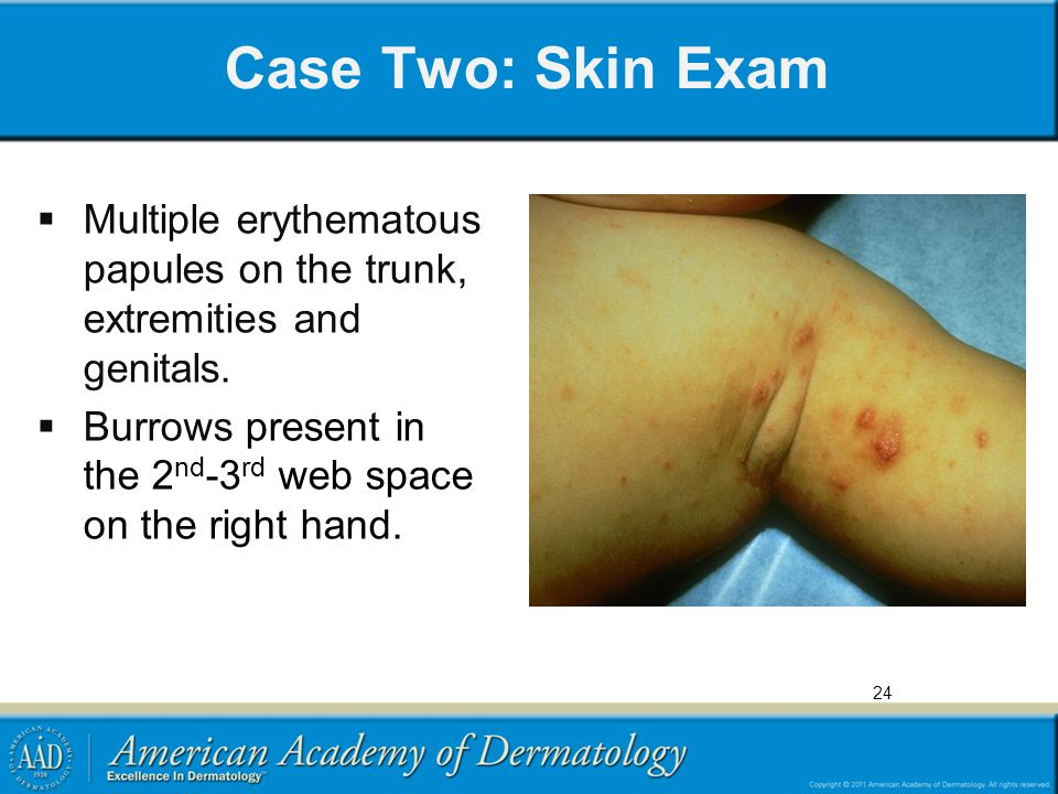 Case Two: Skin Exam Multiple erythematous papules on the trunk, extremities and genitals.
