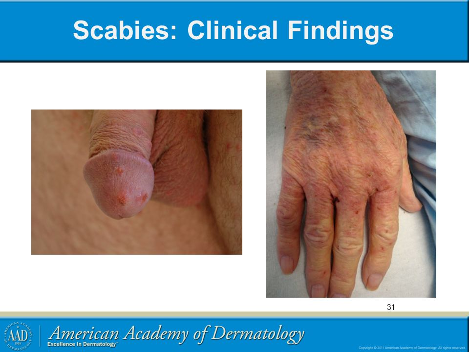 Scabies: Clinical Findings