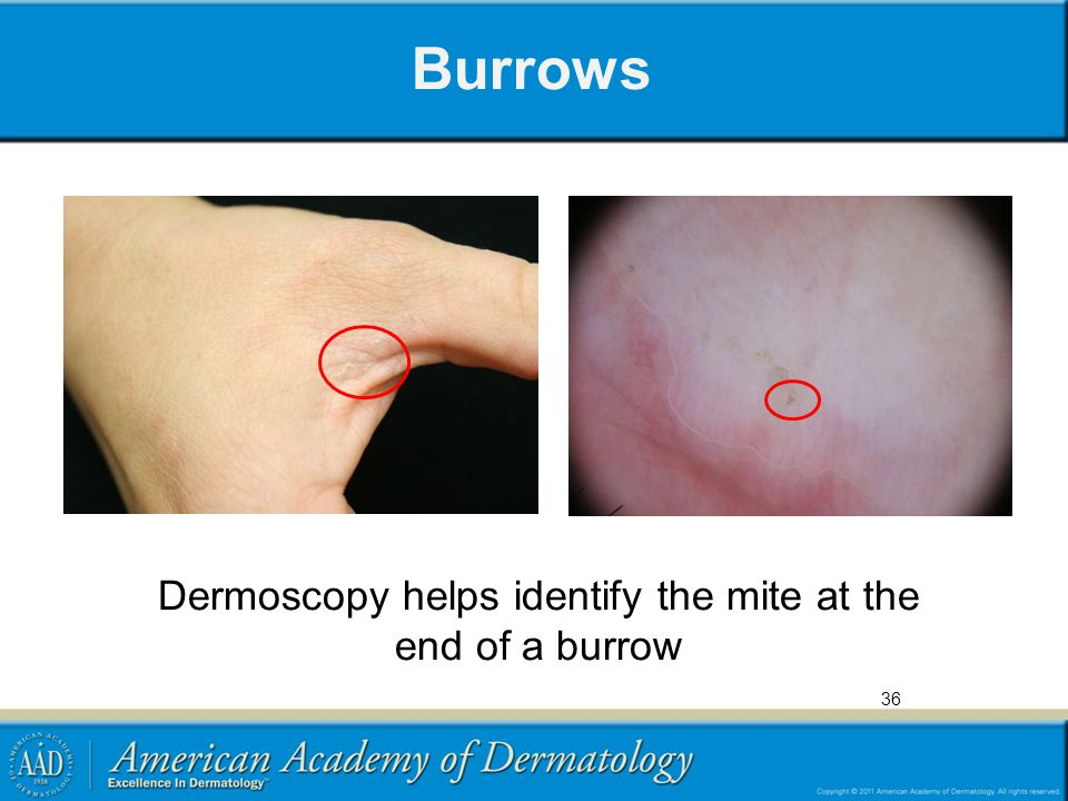 Dermoscopy helps identify the mite at the end of a burrow