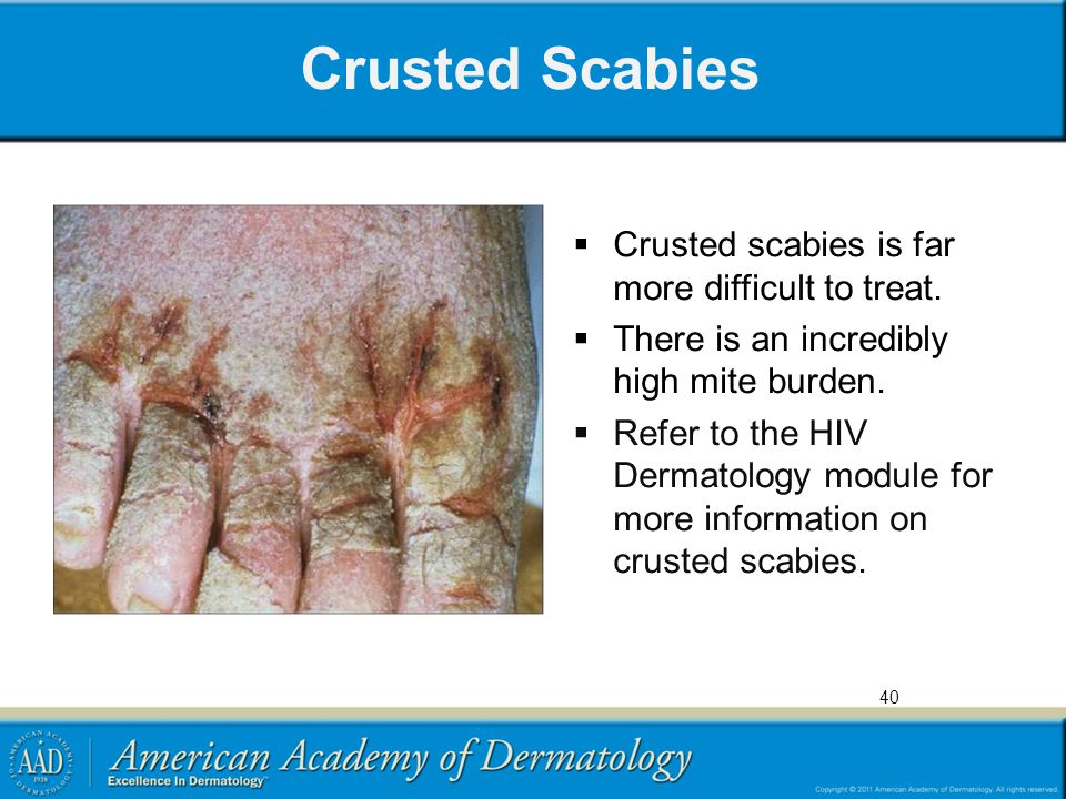 Crusted Scabies Crusted scabies is far more difficult to treat.