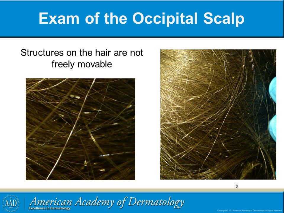 Exam of the Occipital Scalp
