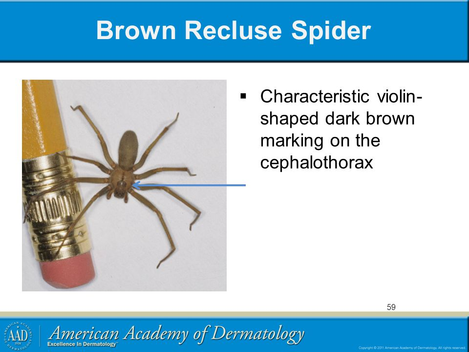Brown Recluse Spider Characteristic violin- shaped dark brown marking on the cephalothorax