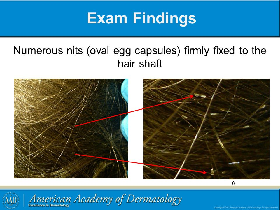 Numerous nits (oval egg capsules) firmly fixed to the hair shaft