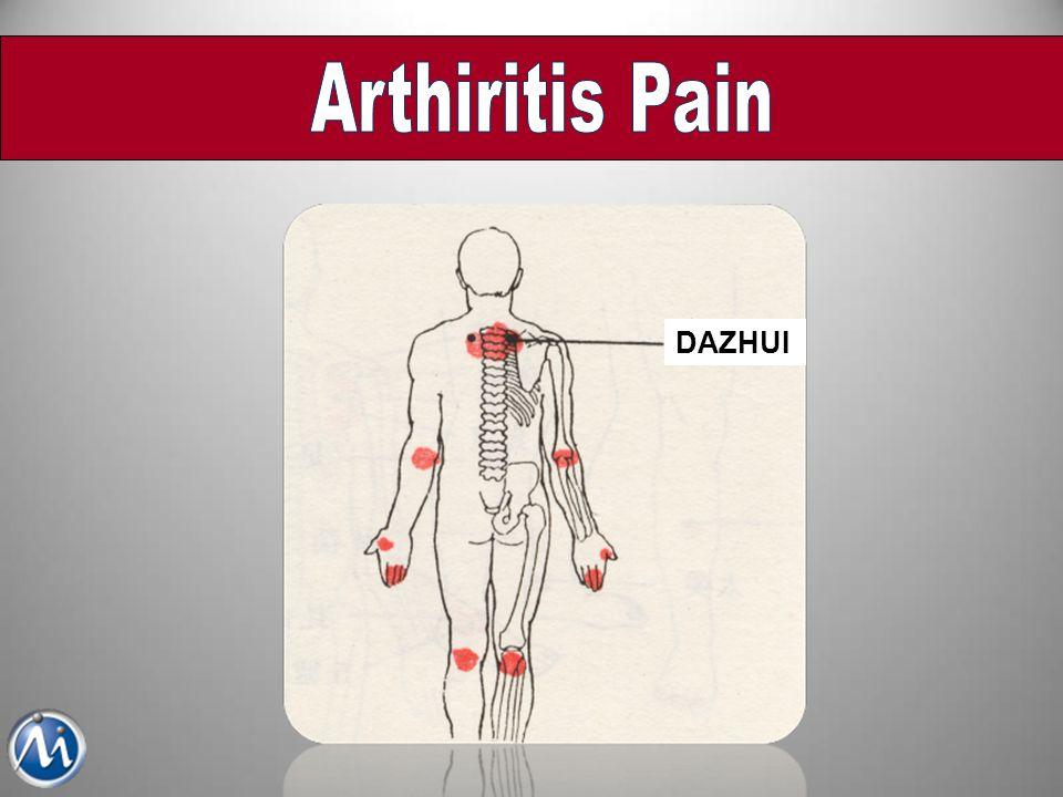 Arthiritis Pain DAZHUI
