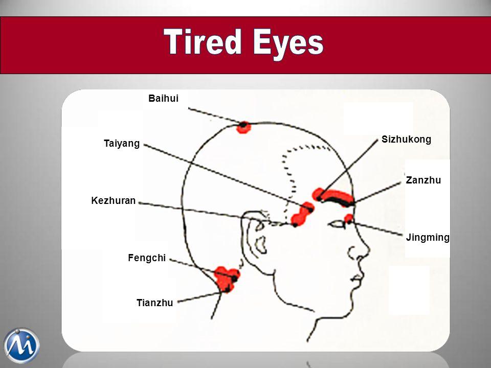Tired Eyes Baihui Sizhukong Taiyang Zanzhu Kezhuran Jingming Fengchi