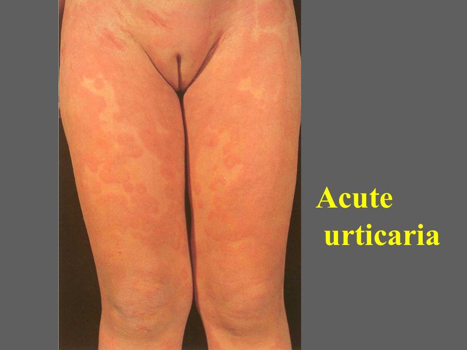 Acute urticaria